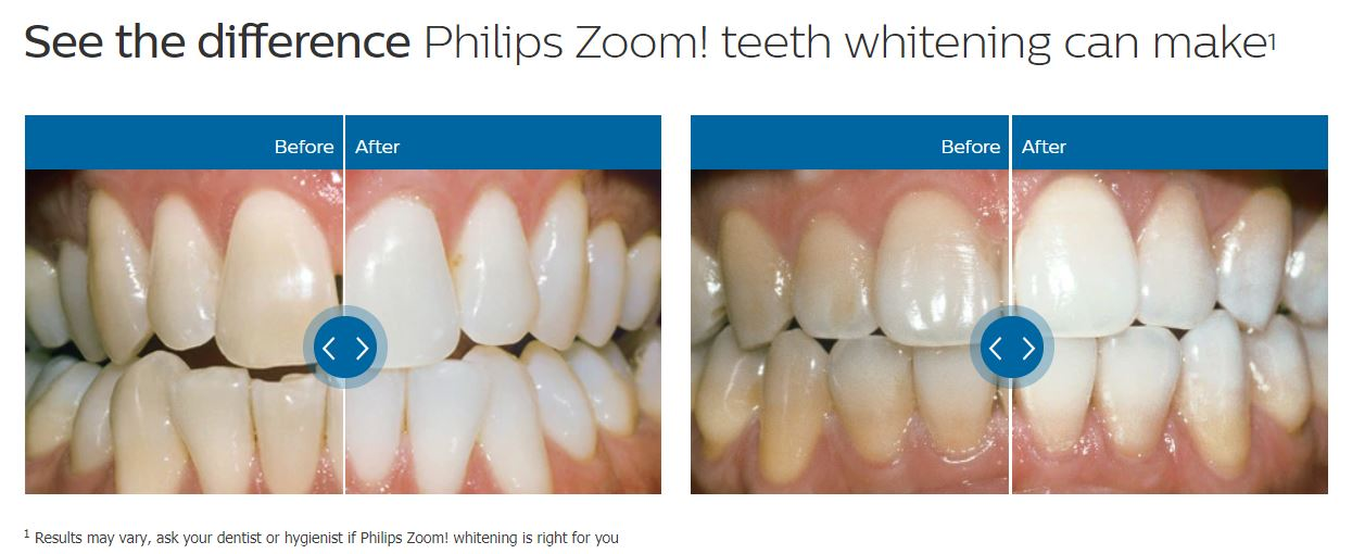 Teeth Whitening-before and after